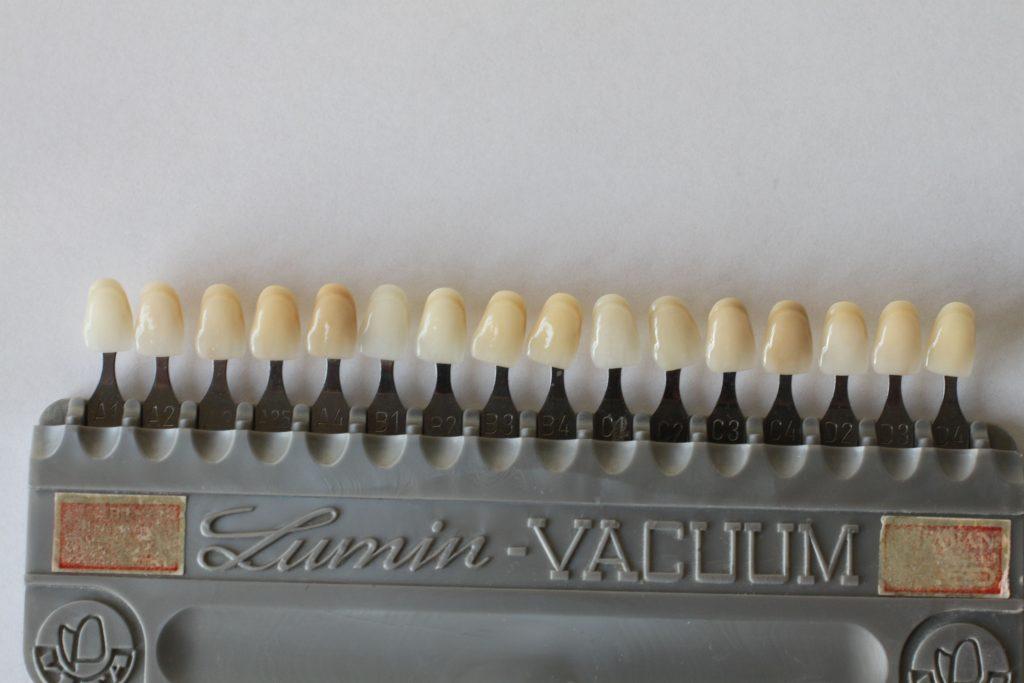 Zahnfarbe b1